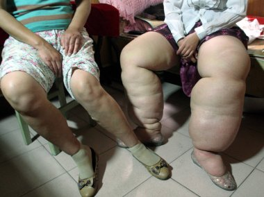 Wang Cheng, right, 23, who suffers from Lymphedema, which caused fat legs, compares her legs with the normal ones of her mother at home in Xuzhou, east Chinas Jiangsu province 12 June 2007