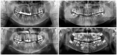 Panoramic dental x-ray digital image of upper and lower jaw. Radiograph scanning of maxilla and mandible. Focal plane tomography to thirty-year-old woman, forty-year-old man, child aged seven years