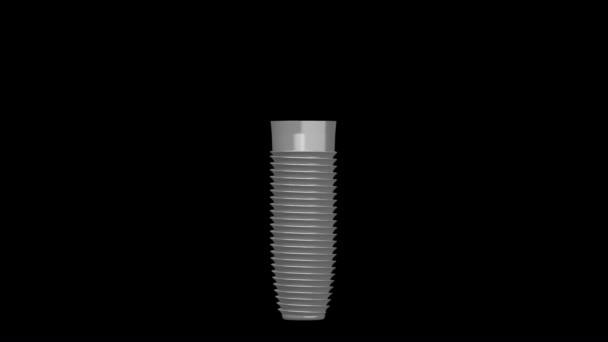 3D Zahnimplantat / Zahnimplantat Animation - auf schwarzem Hintergrund.