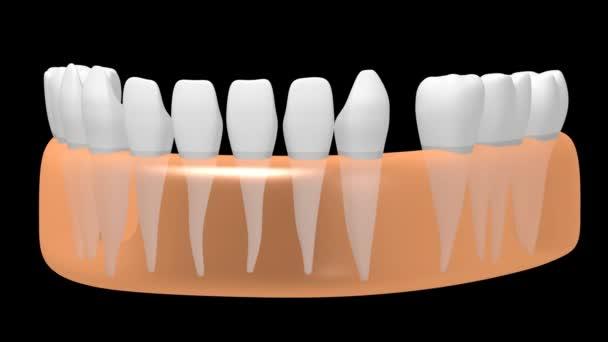 3D-Animation Zahnimplantat / Zahnimplantat - auf schwarzem Hintergrund.