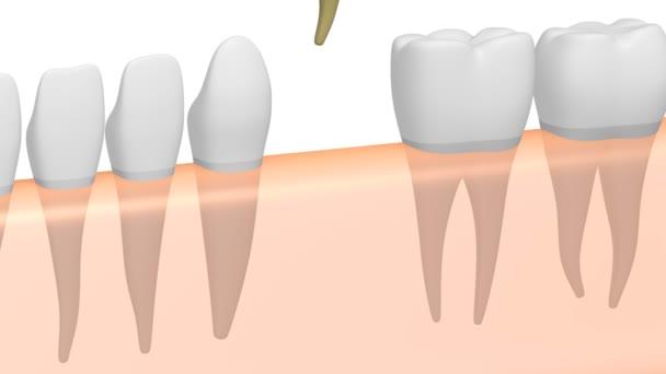 3D-Animation Zahnimplantat / Zahnimplantat - auf weißem Hintergrund.