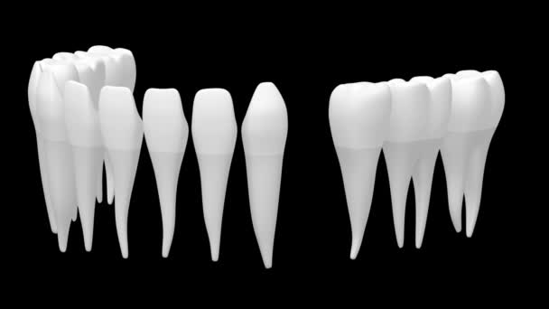 3D dental implant/ tooth implant animation - on black background.