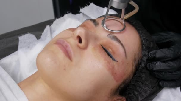 Fractional laser CO2  Cosmetic procedure  Woman having a laser skin  treatment in a skincare clinic, a resurfacing technique for wrinkles, scars  and solar damage to the skin of her face  4k