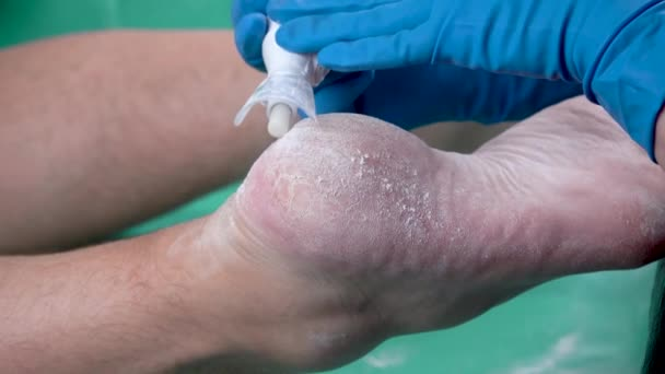 Peeling pomocí profesionálního pedikúrového nástroje. Odstraňuji tvrdou mozolnatou kůži na chodidlech. odstranění mozolů a kukuřice na pánských nohou