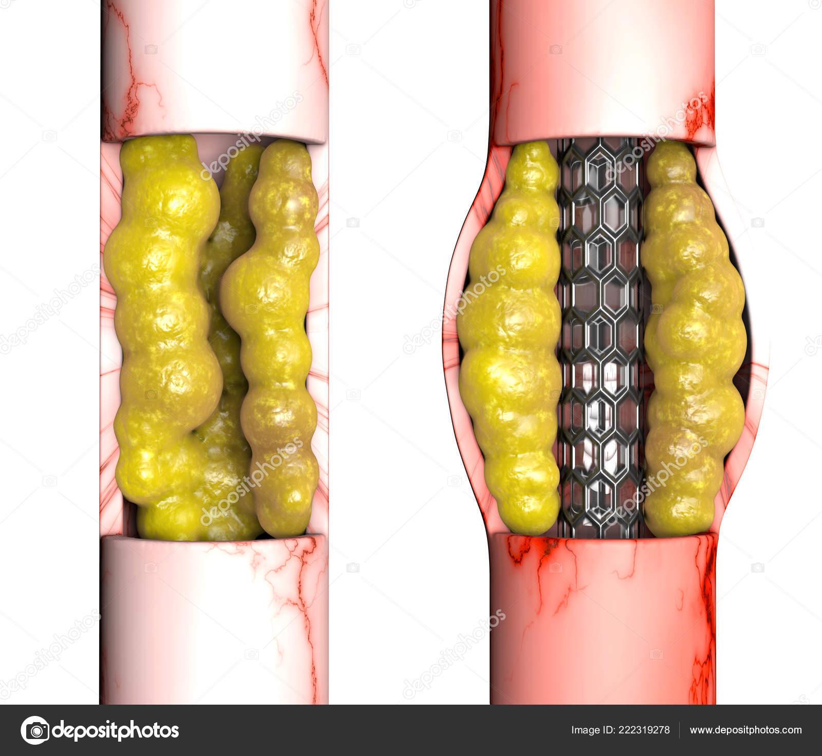 Coronary Artery Bypass Surgery Surgical Procedure Restore