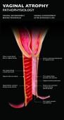 Atrofické záněty pochvy je zánět pochvy v důsledku tkáně ředění v důsledku nedostatku estrogenů. Po menopauze vaginálního epitelu mění a stává se několika vrstvy silné. Urogenitální příznaky patří
