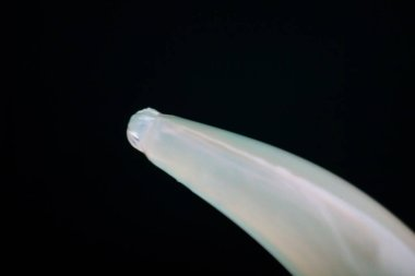 Macro photo of Toxocara canis roundworm from a dog