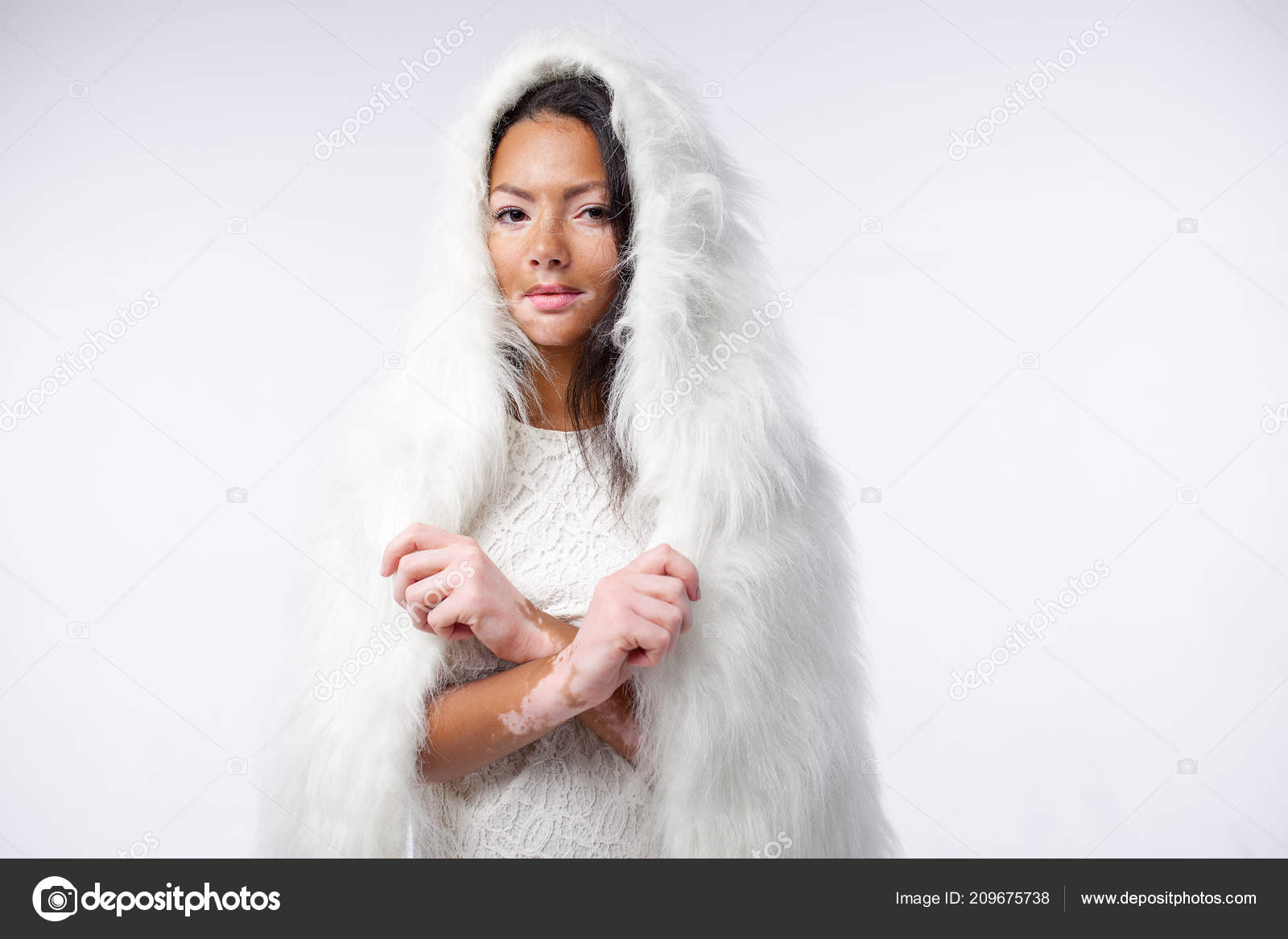 A Beautiful African Girl With Skin Problems Is Dressed In Warm White Faux Fur Vitiligo Concept Stock Photo C Andreonegin 209675738