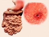 Výskyt žaludeční ulcera v gastrointestinálním traktu. Ilustrace