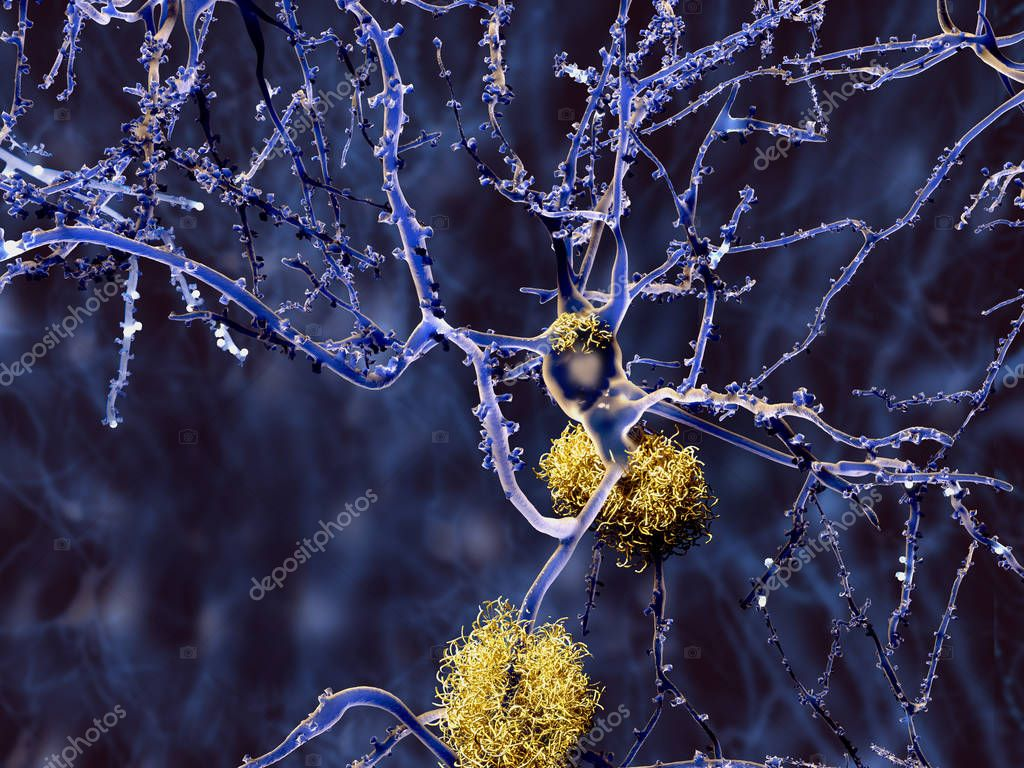 Alzheimer disease: neuron with amyloid plaques. Illustration