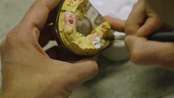 Dental technician makes a dental crown