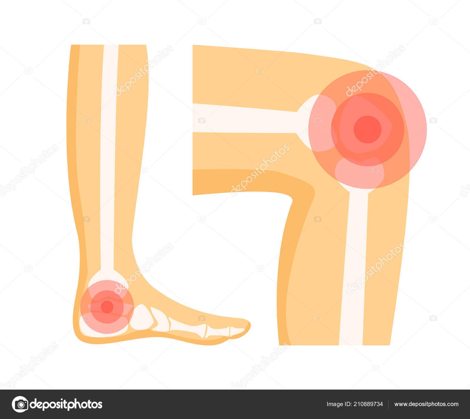 orthopedic problems in foot vector illustration vetor de stock
