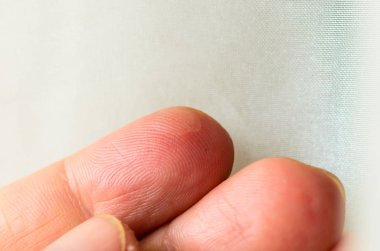 Close up wet callus or blister on the hand finger, healthcare and medical concept.