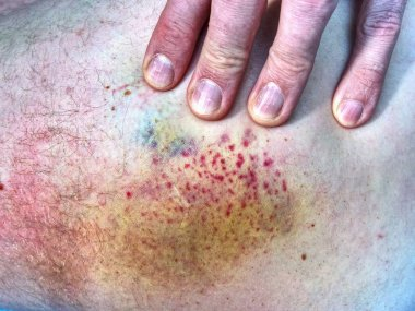 Bruised wound injury on human body. Patient show injured body with large paintful hematoma.