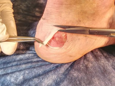 Hot painful place with bloody skin and wetted wound. Wet bloody abrasion on the skin beneath the ankle of a sports patient.