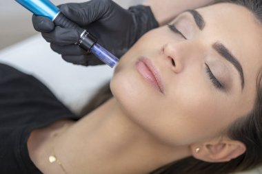 Needle mesotherapy. Anti aging. Beautiful woman having a beauty treatment in spa