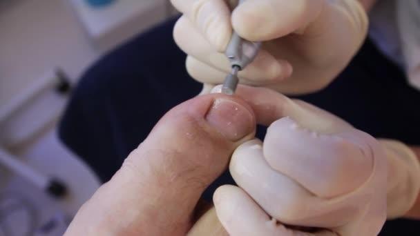 Hardware pedicure.podology.a Podologe arbeitet mit einem Patienten thumbnail.close-up