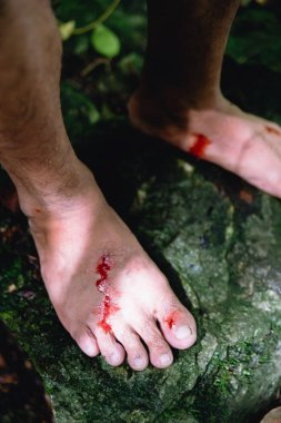 Wounds and blood on men foot caused by bloodsucker in Hala Bala wildlife sanctuary.