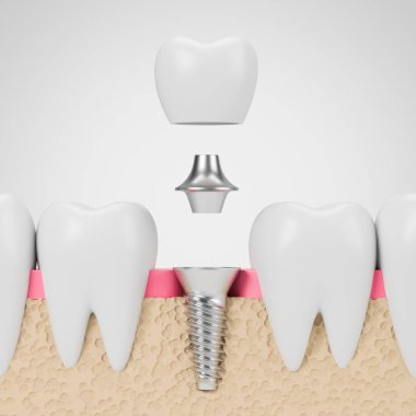 Teeth with implant screw, white background