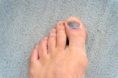 Injury of toe nail. Effects wearing uncomfortable footwear. Nail hematoma. Take care of your feet. Pedicure and podiatry. Treatment of bruise and fracture. Medicine concept. Trauma foot toes nails