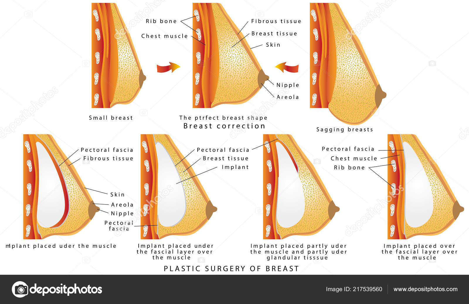 Plastic Surgery Breast Diagram Method Insertion Breast Implant