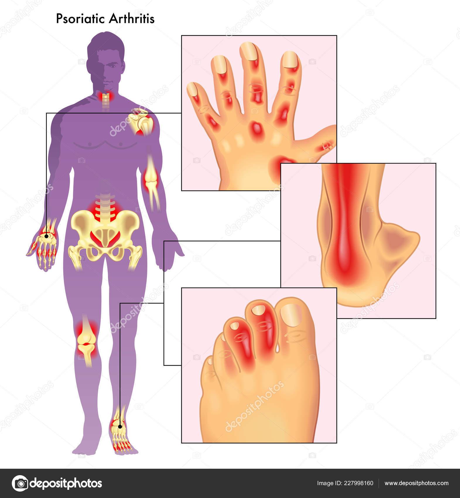 psoriatic arthritis svenska