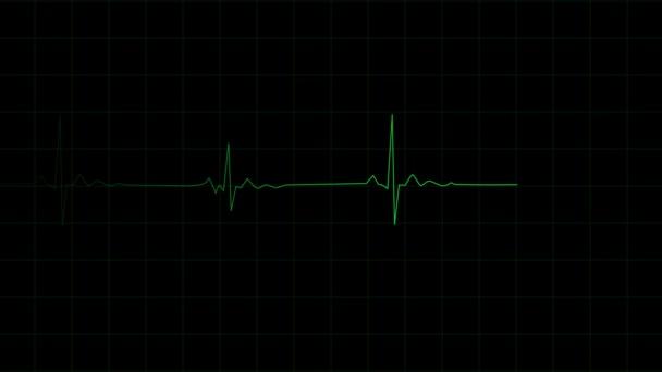 3D-s renderelés, szívverés frekvencia a szív vonal monitor felvételi impulzus.