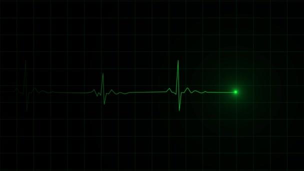 3D-Darstellung einer Herzschlagfrequenz auf kardiographisch aufzeichnenden Pulsen.