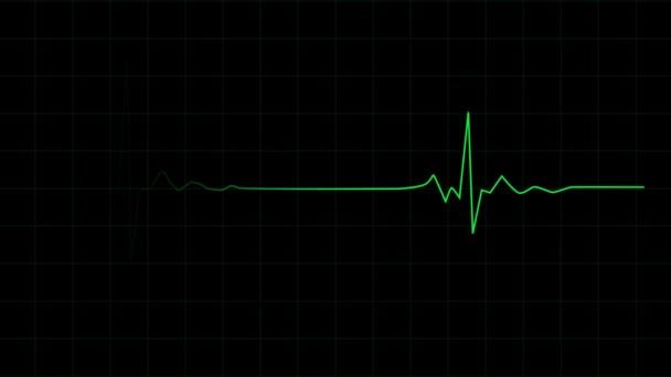 3D animáció a szívverés ritmus egy elektrokardiogram. Egészségügyi.