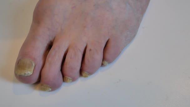 video varicose foot
