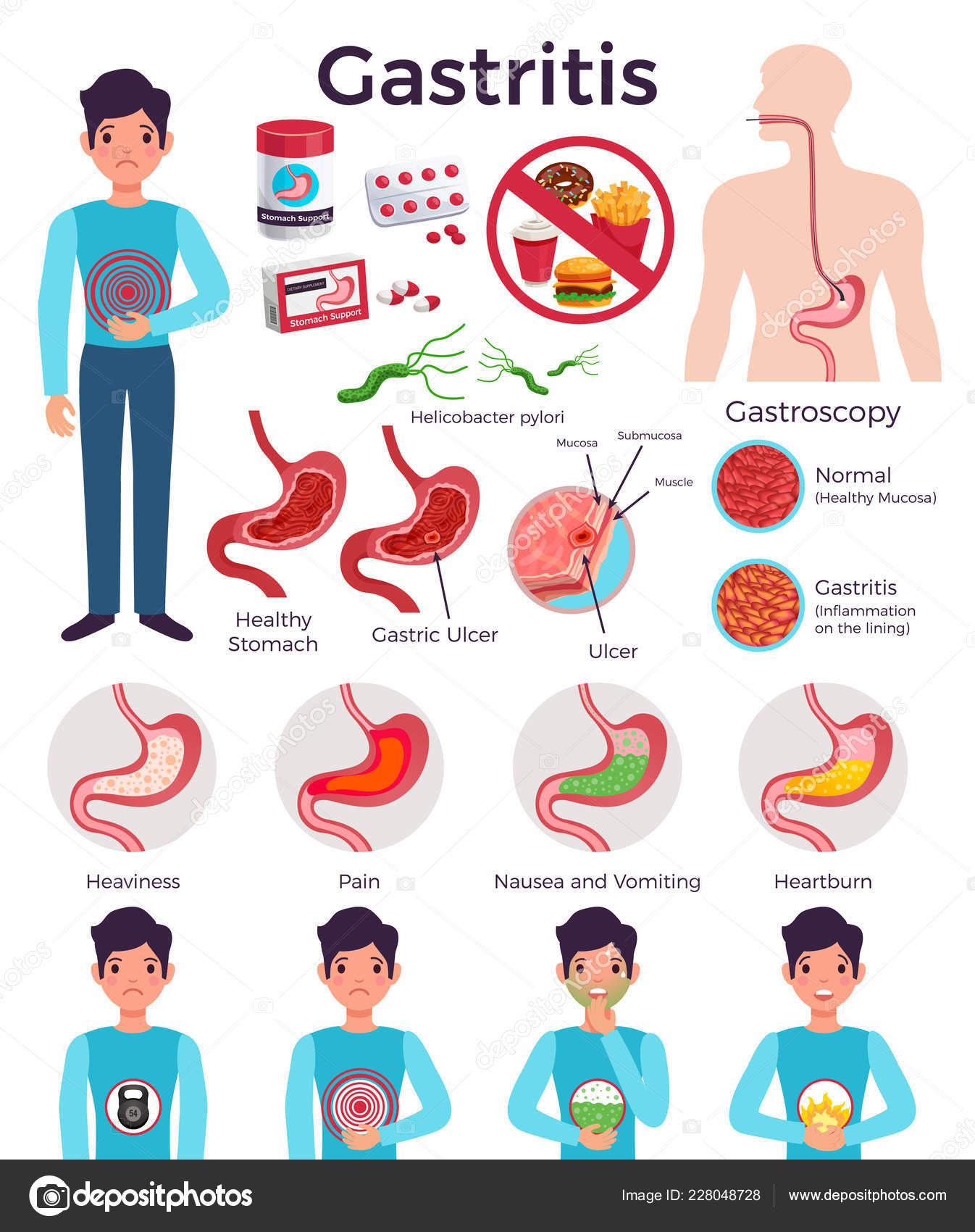 Ernährungsplan Bei Gastritis