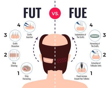 Hair Transplantation Fut Vs Fue