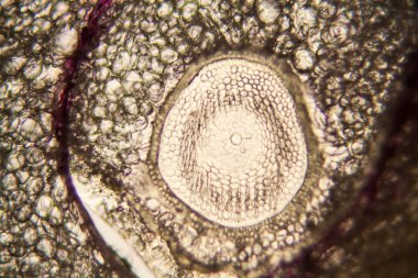 Onion root cells at the microscope