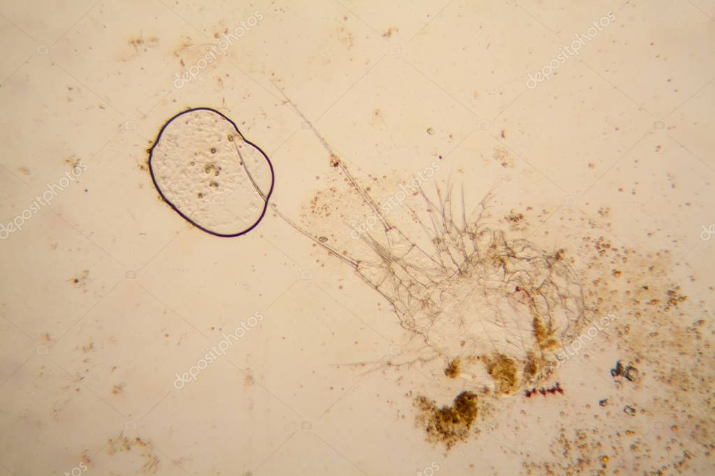 Fresh pond water plankton and algae at the microscope. Dead copepod details