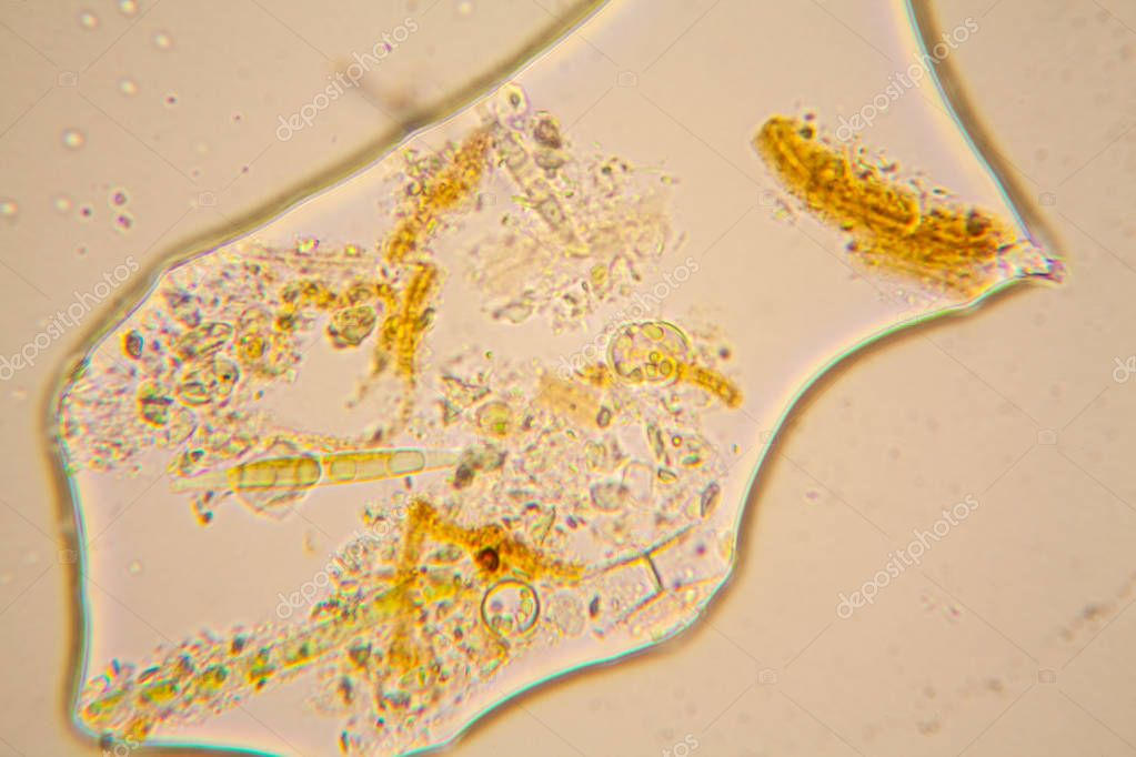 plankton and diatoms The phytoplankton assemblage of lake kinneret is dominated by dinoflagellates secondary phytoplankton biomass contributors are cyanobacteria, chlorophytes, and diatoms, whereas cryptophytes are.