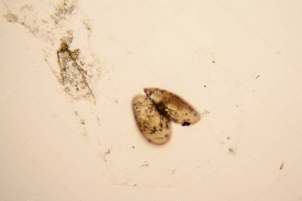 Fresh pond water plankton and algae at the microscope. Ostracod crustacean