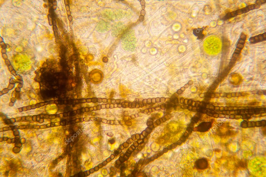 Fresh pond water plankton and algae at the microscope. Nostoc commune