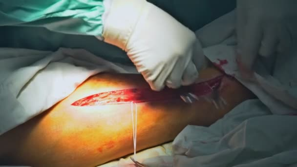 Chirurgové, šití dlouhodobě nemocných pacientů po vážné operaci.