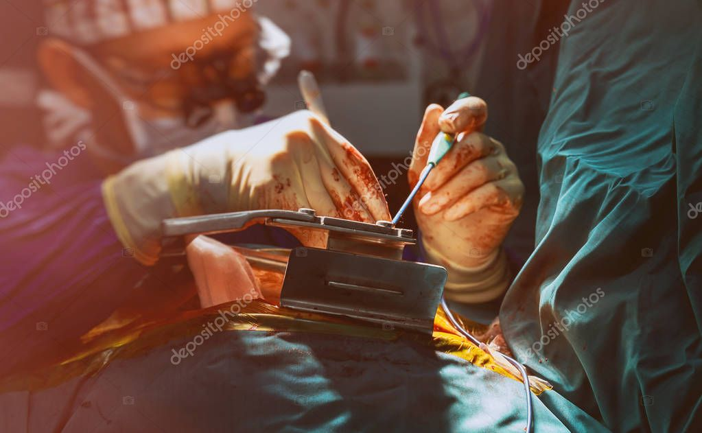 Heart valve replacement surgery during open-heart surgery in operating room
