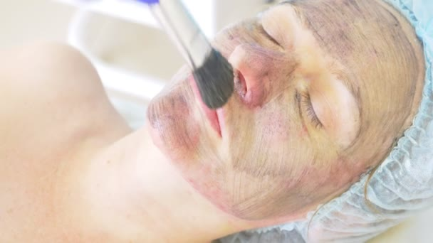 Carbon facial treatment. Laser pulses cleanse the skin of the face. Hardware cosmetology treatment. carbon peeling. close-up. super Slow motion