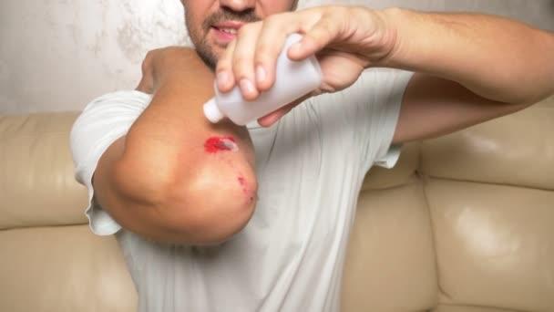 Close-up. ošetření ran peroxidem vodíku. první pomoc při oděním.