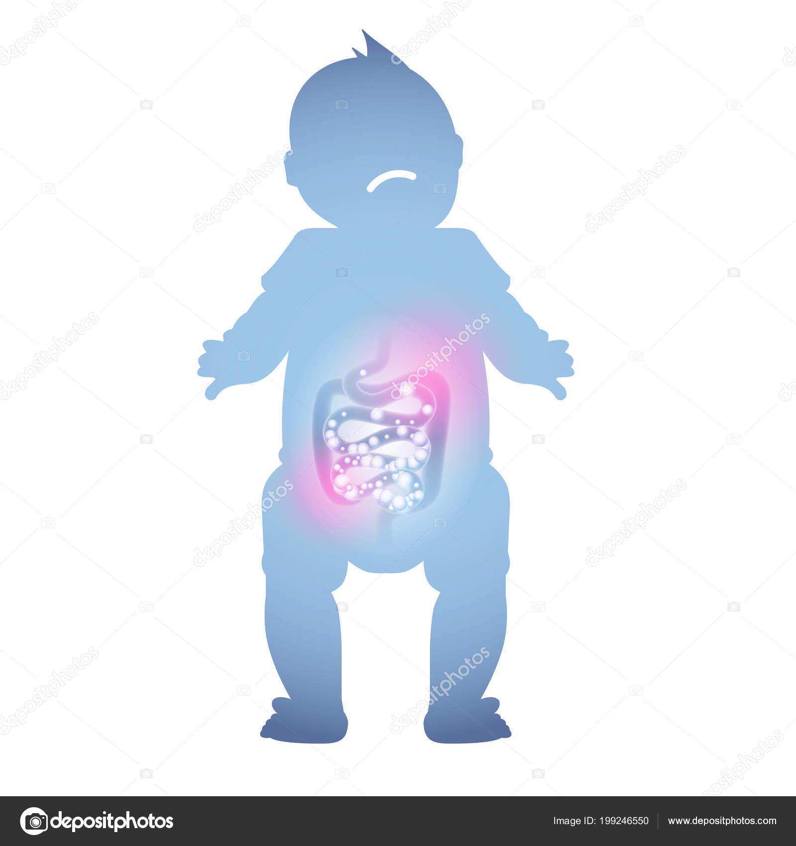 Abstrakte Darstellung Eines Kranken Babys Darm Kranke Verdauung