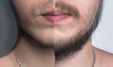 Young Man WIth Beard Before And After Shaving