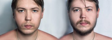 Young Handsome Man WIth Beard Before And After Shaving