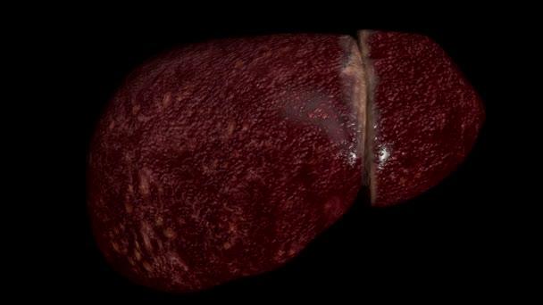 Toto video ukazuje játra postižená cirhózou