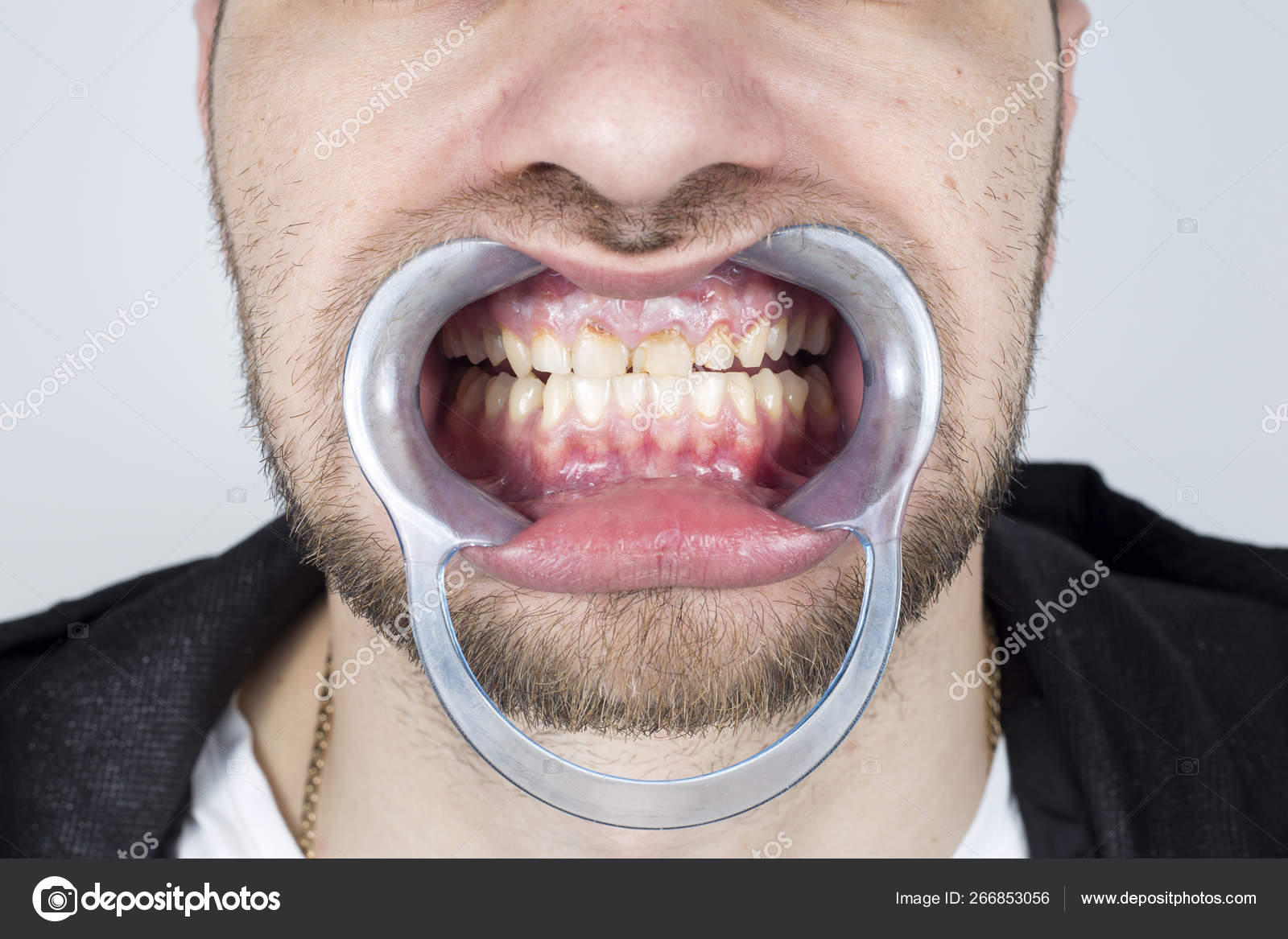 Tooth Decay Tartar Build Contribute Inflammation Gums Teeth