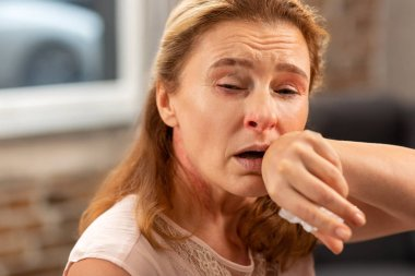 Woman having running nose and cough suffering from allergy