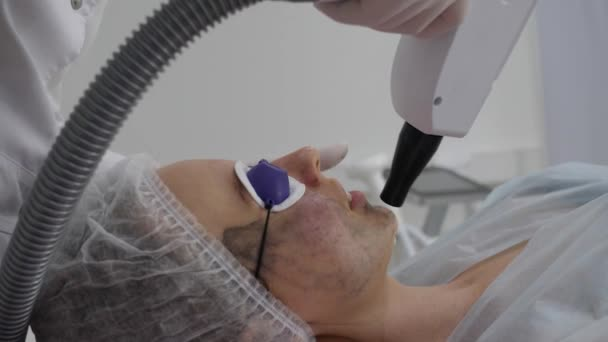 Carbon peeling: laser removes an old skin with carbon fiber layer. Girl and beautician in protective glasses