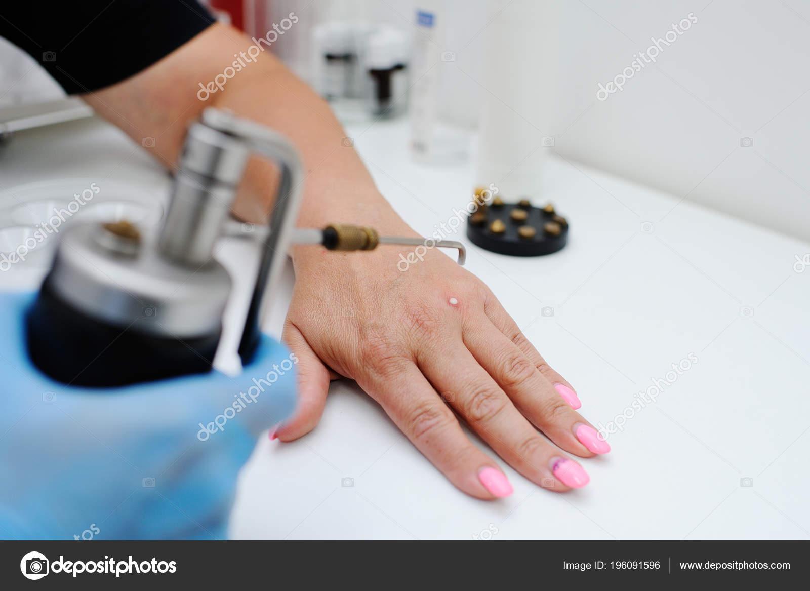 Удаление бородавок в дерматологической клинике — Стоковое фото ...