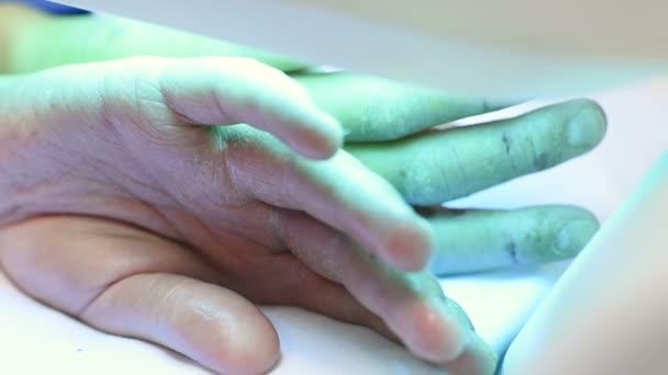 rukou pacient s lupénkou detail pod ultrafialovým světlem.